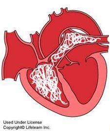 cartoon heart with hearworm
